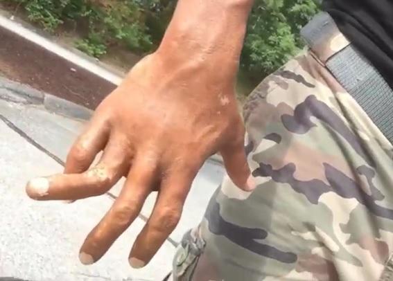 The Rock Shares Video Of Broken Finger On Instagram